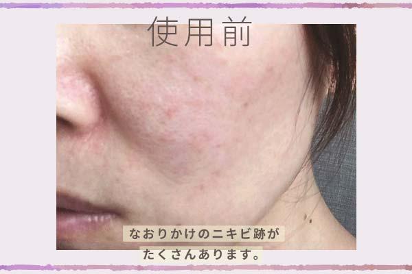 「大人のニキビライン」使用前の肌はなおりかけのニキビ跡がたくさんあります。