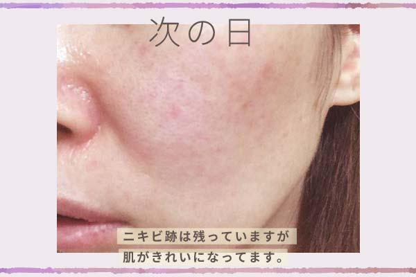 「大人のニキビライン」使用した次の日の肌はニキビ跡は残っていますが、きれいになっています。