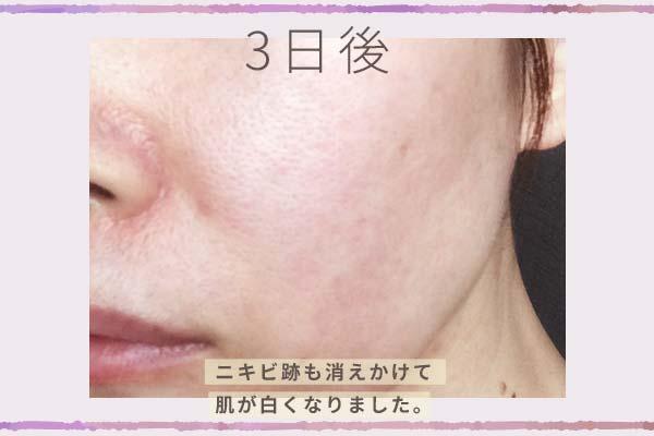 「大人のニキビライン」使用3日後の肌はニキビ跡も消えかけて肌が白くなりました。
